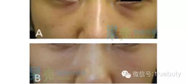色素型黑眼圈