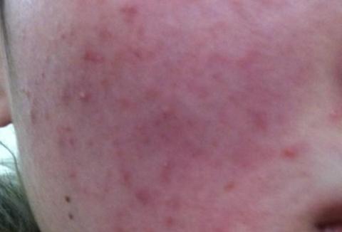 激素依赖皮炎