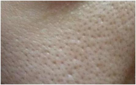 毛孔粗大和痘坑是怎么回事?