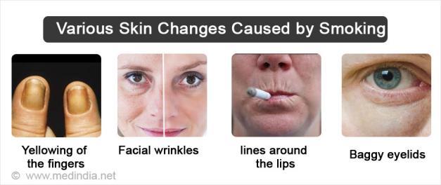 吸烟加速老化