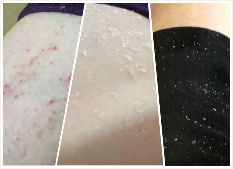 肌肤干燥现象