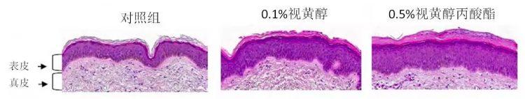 视黄醇丙酸酯(RP)
