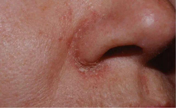 脂溢性皮炎